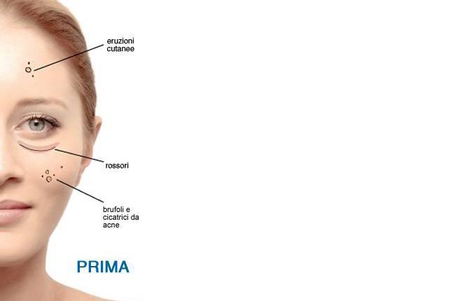 oxygenprima